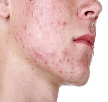 Dermatologia do adolescente