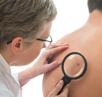 Conheça o melanoma: o mais agressivo tipo de câncer de pele