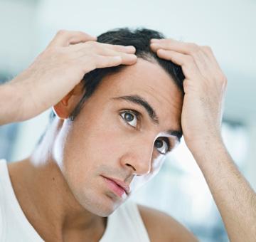 Queda de cabelo: quando devemos nos preocupar?