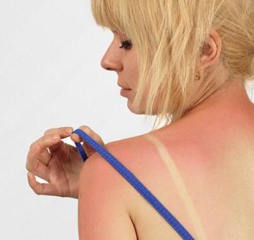 Queimadura solar: saiba o risco, como evitar e cuidar das agressões do sol na pele