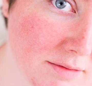 Rosácea: entenda a doença e saiba como conviver com ela