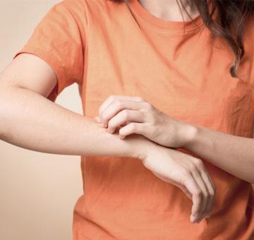 """Atopia: entenda o que é, as causas e como tratar a doença também chamada de """"asma na pele"""""""