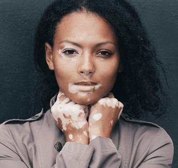 Vitiligo: saiba mais sobre a doença que apresenta manchas brancas na pele