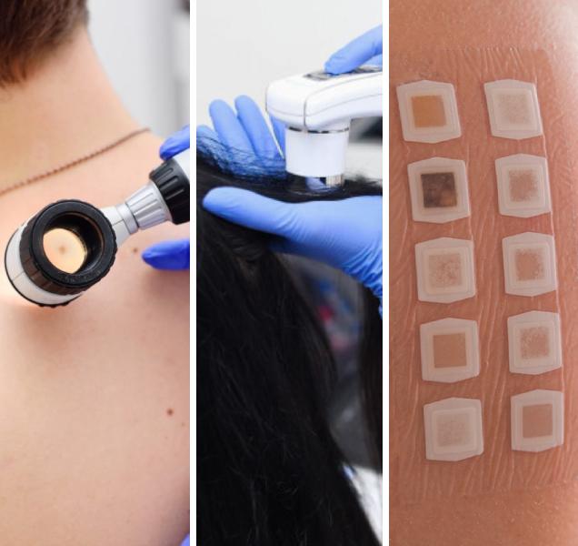 Investigação Diagnóstica Dermatológica